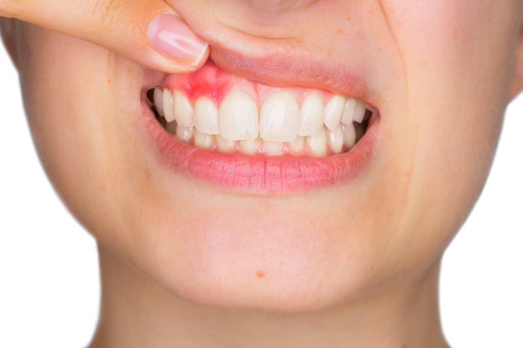 Tandkødsbetændelse er hverken pænt at se på eller behageligt at lægge mund til. Du kan dog i mange tilfælde undgå den. Foto: Scanpix.