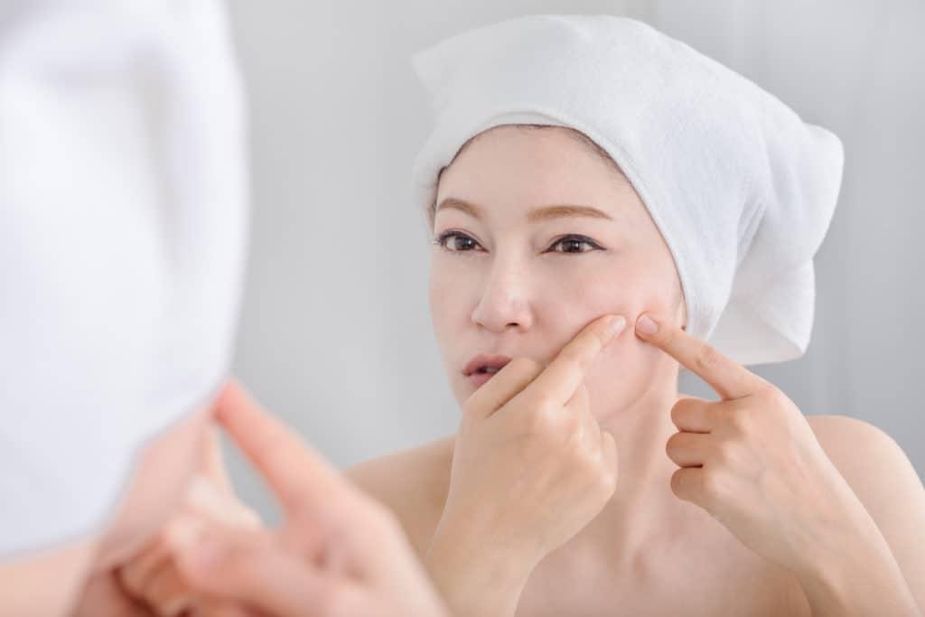 Man får akne, når udførselsgangene til hudens talgkirtler stoppes med talger eller døde hudceller. Talgkirtlerne producerer talg, kaldet sebum.